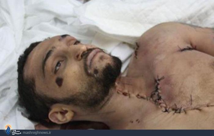 انسانهایی که سازمان ملل آنها را انسان نمیداند/ خونهایی که فدای حصر شد +تصاویر (18+)/ در حال ویرایش