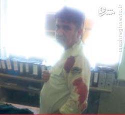 زخمی شدن 4پلیس درمواجهه با شرور آبادانی+عکس