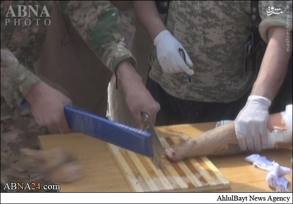 داعش دست یک سوری را از مچ قطع کرد +تصاویر(+18)