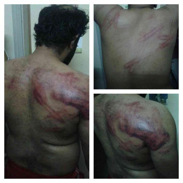 در زندانهای بحرین چه می گذرد؟+ عکس