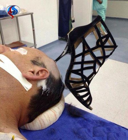 پاشنه کفش زن در سر شوهر جا ماند +عکس