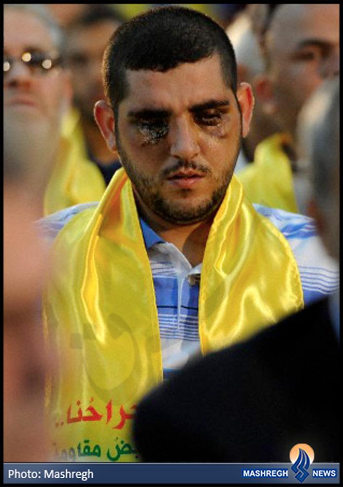 عکس / چشمانی که به حضرت زینب(س) هدیه شد