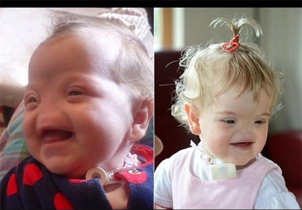 تولد دختری بدون بینی+تصاویر