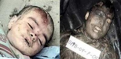 فسفر سفید؛ سلاحی که روی مدعیان حقوق بشر را سیاه کرد +عکس (18+)