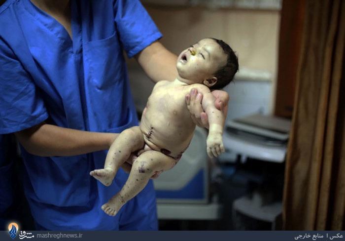 شهادت نوزاد شش ماهه در غزه