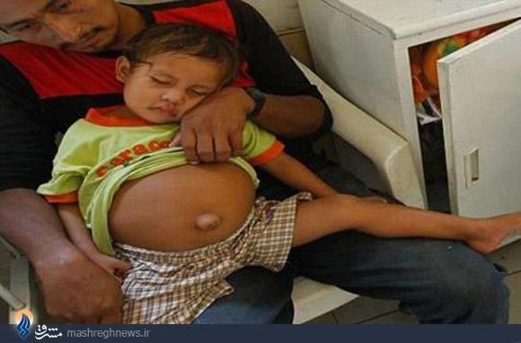 حاملگی کودک 3ساله در پرو+عکس
