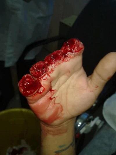 قطع انگشتان یک سارق در ملأ عام