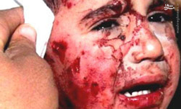 جنایت اسرائیل