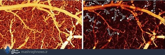 بلایی که کوکائین بر سر مغز میآورد+عکس