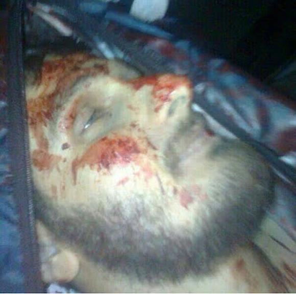 عکس/شهیدی که ریشهایش را با خون خضاب کرد