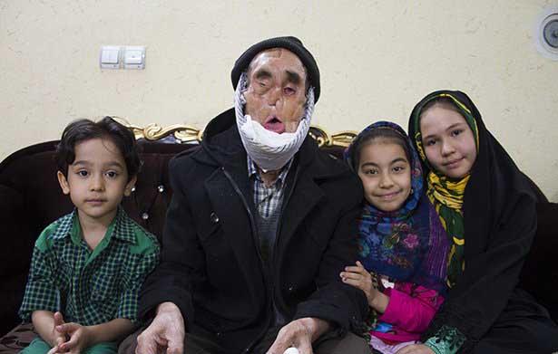 صورت آقارجبها سوخت تا چهره ایران زیبا بماند