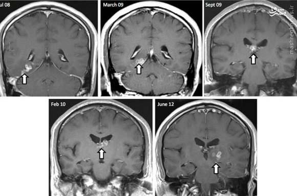 کشف کرم 4سانتی در مغز مرد انگلیسی+عکس