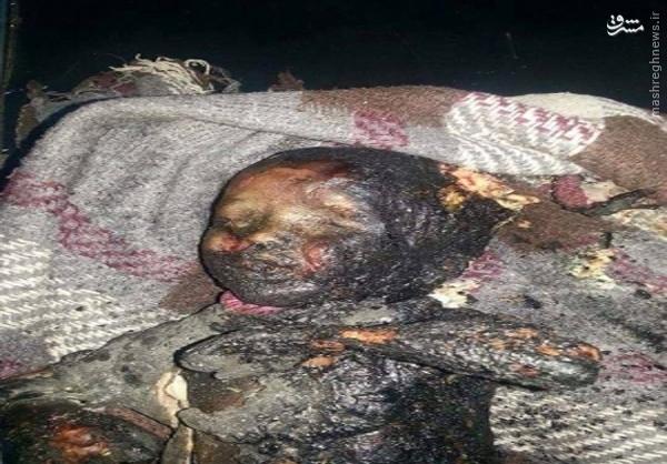 عکس/ دردناکترین تصویر از جنایت رژیم آل سعود