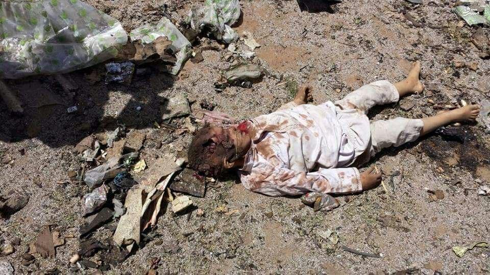 عکس/آل سعود،رژیم کودک کش