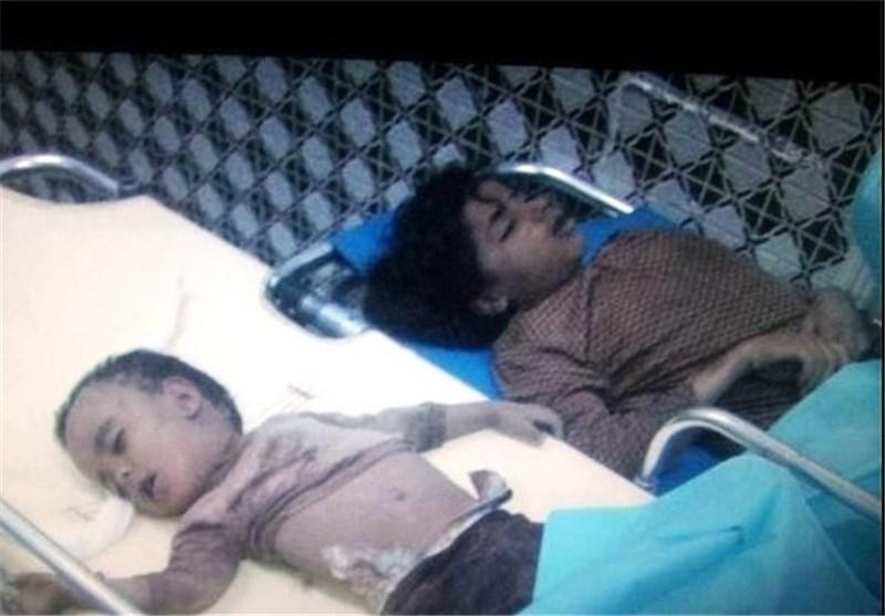 تجاوز سعودی ها به یمن با چراغ سبز آمریکا/ انصارالله: پاسخ ما حمله نظامی است و عربستان تاوان سنگینی خواهد پرداخت/ سرنگونی چهار جنگنده سعودی و اسارت خلبان/عربستان:تجاوز نظامی علیه یمن ادامه می یابد+تصاویر