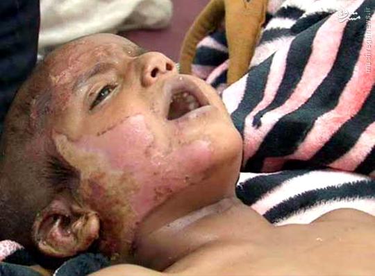 عکس/مجروحیت کودک یمنی که در بمباران صعده