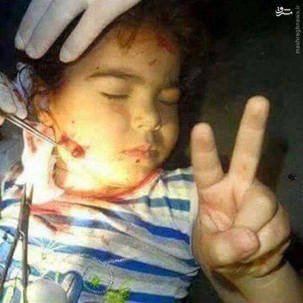 عکس/ مقاومت را از این کودک یاد بگیرید