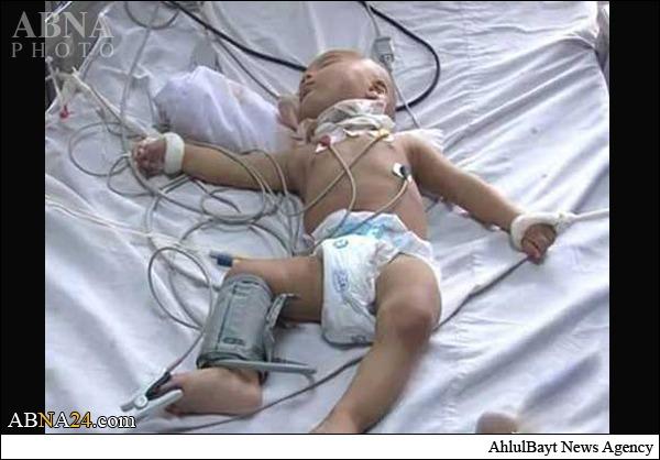 تروریستها گلوی نوزاد هشت ماهه را بریدند+عکس