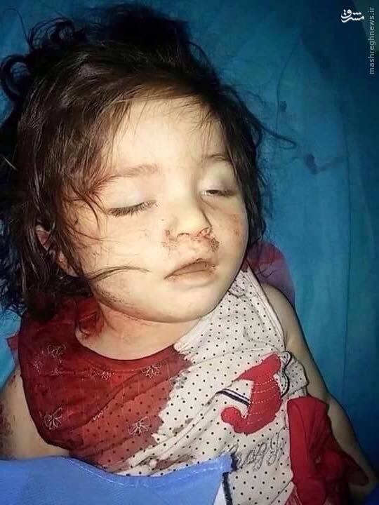 داعش این دختر دوساله را اعدام کرد+عکس