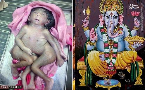 پرستش یک کودک ناقص الخلقه در هند!!!/عکس