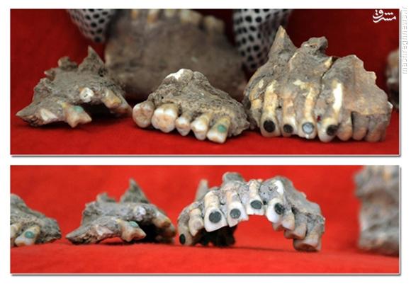 شواهدی از دندانپزشکی در ۴۰۰۰ سال قبل ایتالیا+عکس