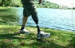 ساخت نخستین پای مصنوعی دارای حس