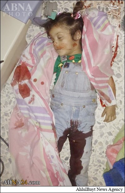 شهادت دختربچه شیعه سوری در حمله موشکی تکفیری ها + عکس