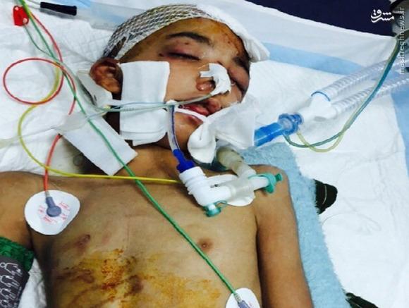گروگانگیری و شکنجه 60 روزه کودک سیستانی +عکس