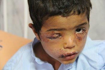 حمله سگ ولگرد به کودک 3ساله در زاهدان +عکس