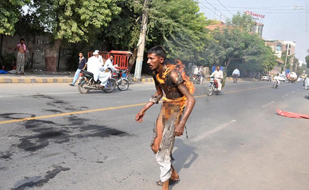 عکس/ خود سوزی در اعتراض به درآمد کمدر لحظه ای تکان دهنده مرد 24 ساله پاکستانی در خیابان مولتان در پنجاب پاکستان به منظور نشان دادن اعتراض خود به درآمدش خود را سوزاند.بنا به گزارش رسانه های محلی، آقای احمد خود را در حالی به آتش کشید که در مقابل ساختمان محل کارش  قرار داشت.رهگذرانی که در صحنه حاضر بودند وحشت زده تلاش می کردند تا وی را از مرگ حتمی نجات دهند.این مرد پس از انتقال به بیمارستان با وجود 80 درصد سوختگی از مرگ حتمی نجات یافت.