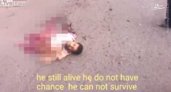 زنده ماندن معجزه آسا داعشی پس از عملیات انتحاری ناموفق +عکس (+18)