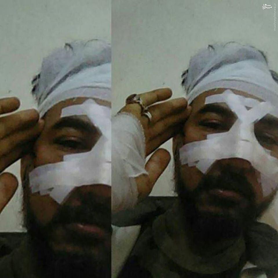 فرمانده ارشد لشگر فاطمیون مجروح شد+تصویر