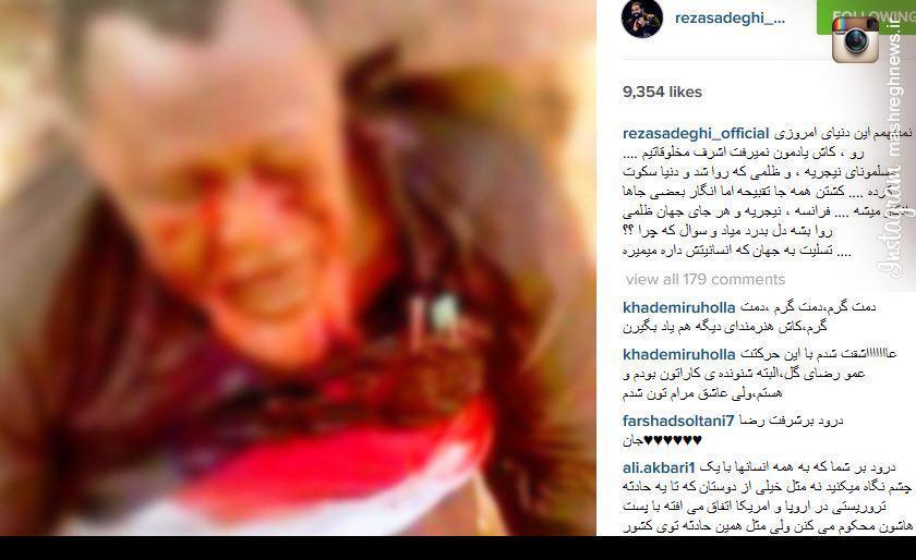 واکنش خواننده پاپ به کشتار شيعيان نيجريه +عکش