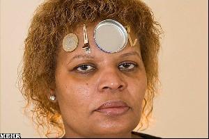 زنی که فلزات را به خود جذب می کند +عکس