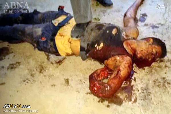 عکس/ جسد داعشی انتحاری در بغداد(18+)