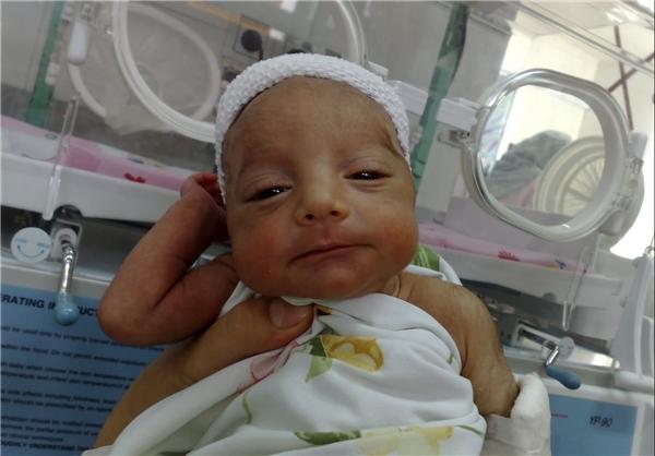 نوزادی با دل و روده بیرون زده +عکس