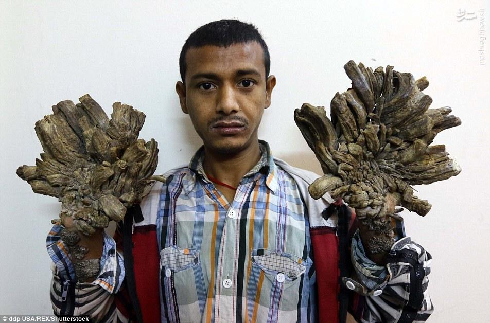 """تصاویر دلخراش از """"بیماری درختی""""در پسر بنگلادشی"""