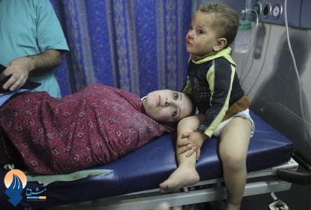 کودکی فلسطینی در کنار مادر مجروحش در بیمارستان شفا- غزه