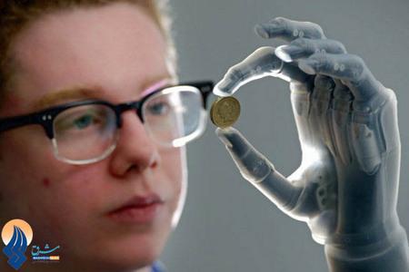 ساخت جدیدترین دست هوشمند مصنوعی در اسکاتلند