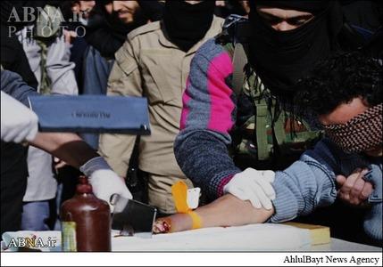 داعش دست یک عضو خود را قطع کرد +عکس(۱۸+)