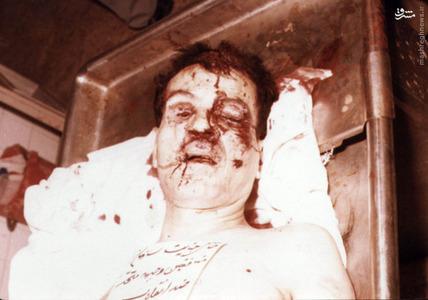پیکر شهید دکتر سید حسن آیت در پزشکی قانونی، ساعتی پس از ترور