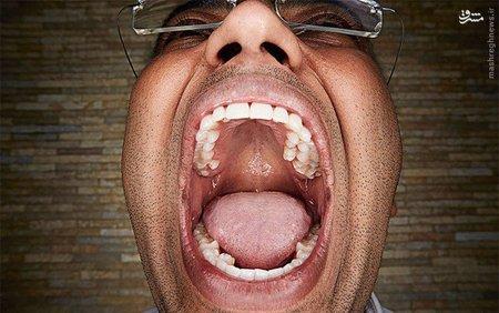 فیگای کومار؛ دهن گشادترین فرد در دنیا