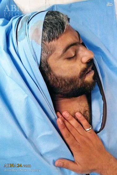 حاج «نادر حمید» پس از شهادت