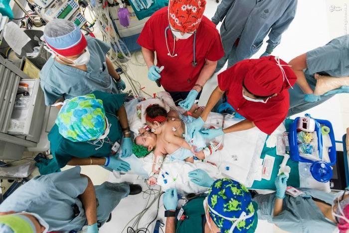 پزشکان تگزاس در عملی که پیچیدهترین جراحی جداسازی دوقلوها عنوان شده است، توانستند آرزوی