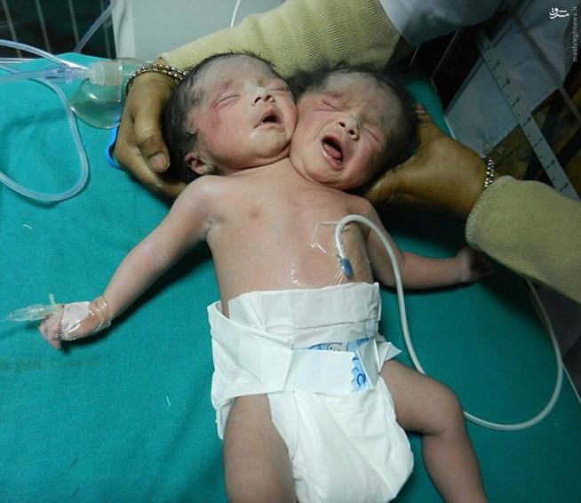 زني در داکا، پايتخت بنگلادش، کودک دو سر به دنيا آورد.