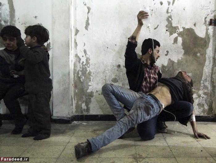 مرد مجروح در بیمارستان دمشق پس از حملات هوایی به