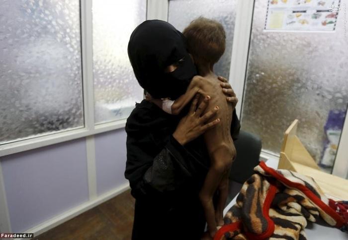 کودک یمنی در آغوش مادر خود در یک مرکز درمانی. این کودک در حملات عربستان به این کشور دجار سوء تغذیه شده است و شرایط درمانی و تغذیه در این کشور به شدت در بحران است. 30 جولای 2015