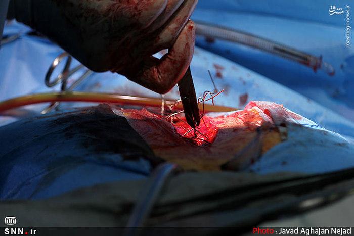 عمل قلب باز,عمل قلب,عکس عمل جراحی قلب