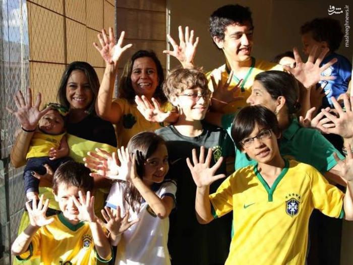 عجیب الخلقه انسان عجیب اخبار برزیل 6 انگشتی 12 انگشتی